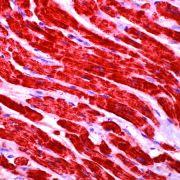 Cytochrome C Antibody (MA5-11674)