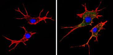 HLA-ABC Antibody (MA5-11723)