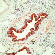 beta Tubulin Antibody (MA5-11732)