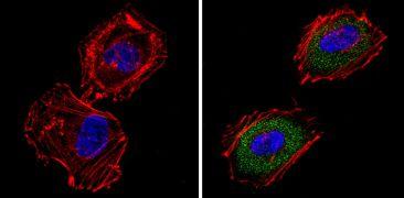 ARF6 Antibody (MA5-11795)