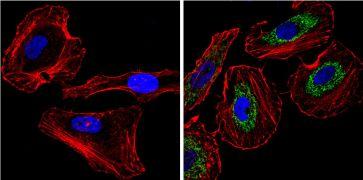 Cytochrome C Antibody (MA5-11820)