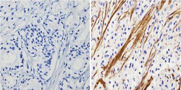 Actin Antibody (MA5-11869)