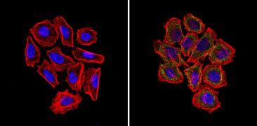 GFAP Antibody (MA5-12023)