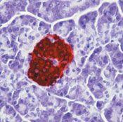 Insulin/Proinsulin Antibody (MA5-12042)