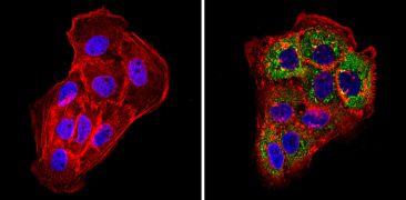 Cytokeratin Pan Antibody (MA5-12231)