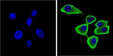 alpha Synuclein Antibody (MA5-12272)