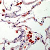 Tartrate Resistant Acid Phosphatase Antibody (MA5-12387)
