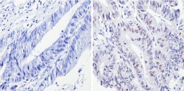 p53 Antibody (MA5-12557)