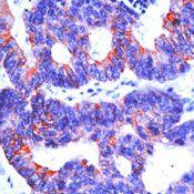 Cytokeratin 19 Antibody (MA5-12613)