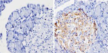 Chromogranin A Antibody (MA5-13096)