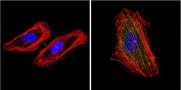Cytokeratin Pan Type I/II Antibody (MA5-13156)