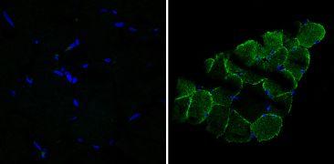 Desmin Antibody (MA5-13259)
