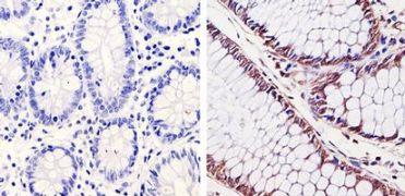 CDK6 Antibody (MA5-13330)