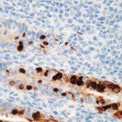 Adenovirus Type 2 Antibody (MA5-13648)