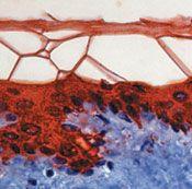 Cytokeratin 10 Antibody (MA5-13702)