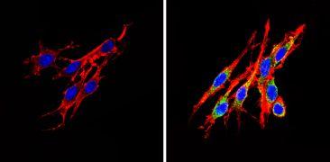 INSR beta Antibody (MA5-13778)