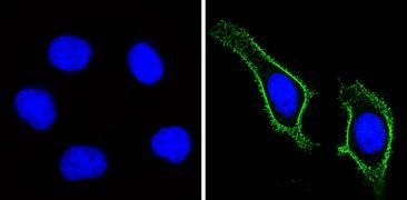 CD44 Antibody (MA5-13890)