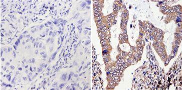 ERCC1 Antibody (MA5-13912)