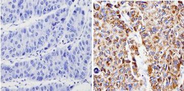 Bax Antibody (MA5-14000)