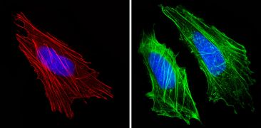 Actin Muscle Antibody (MA5-14084)