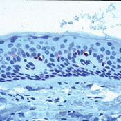 CD1a Antibody (MA5-14096)