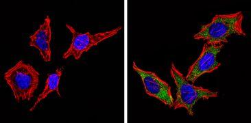 Cyclin B1 Antibody (MA5-14324)