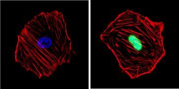 Cyclin D1 Antibody (MA5-14512)