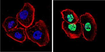 p53 Antibody (MA5-14516)