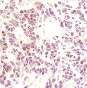 p35 Antibody (MA5-14834)
