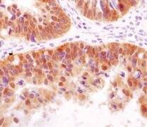 HSP40 Antibody (MA5-14869)