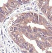 NQO1 Antibody (MA5-15044)