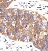 AMPK beta-1,2 Antibody (MA5-15090)