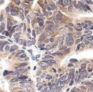 Phospho-eIF2a (Ser51) Antibody (MA5-15133)