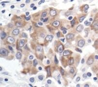 Bcl-xL Antibody (MA5-15142)
