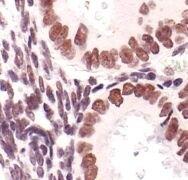 ATF2 Antibody (MA5-15169)