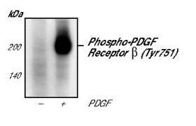 Phospho-PDGFRB (Tyr751) Antibody (MA5-15192)