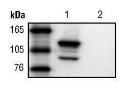beta Galactosidase Antibody (MA5-15222)