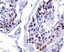 DUX4 Antibody (MA5-16147)