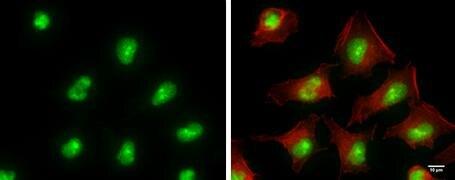 ADAR Antibody (MA5-17285)