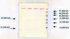 TGF beta-1 Antibody (MA5-18023)