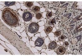 TCHH Antibody (MA5-18026)