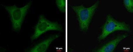 TPI1 Antibody (MA5-18291)