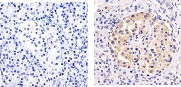 GLUT1 Antibody (MA5-11315)