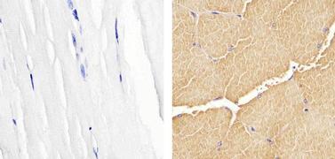 Skeletal Muscle Actin Antibody (MA5-12542)