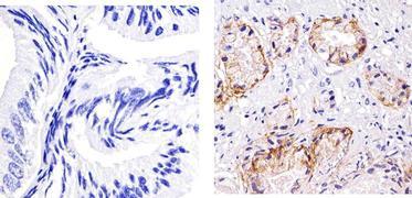 EpCAM Antibody (MA5-12604)