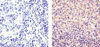Cyclin D3 Antibody (MA5-12726)