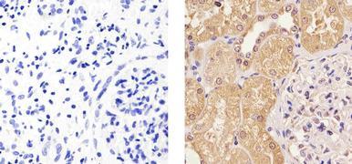 Cyclin D2 Antibody (MA5-12731)