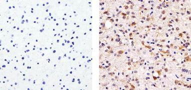 Tau Antibody (MA5-12808)