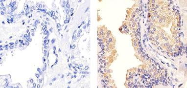 TIMP1 Antibody (MA5-13688)