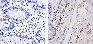 VWF Antibody (MA5-14029)